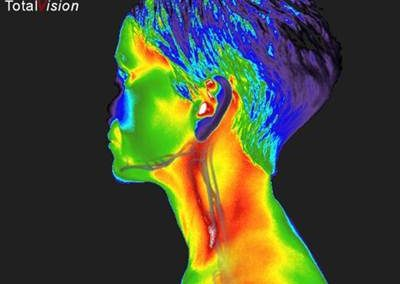 Inflamed-Carotid-thermography-lisa