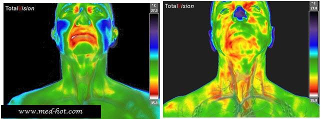 Keep an Eye on Your Thyroid Gland - Lisa's Thermography & Wellness