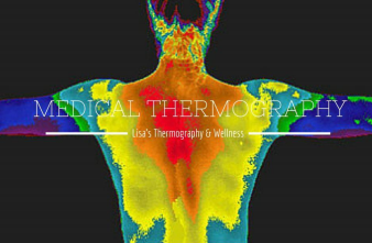 Medical Thermography | What is Infrared Thermography Really? | Lisa's Thermography & Wellness