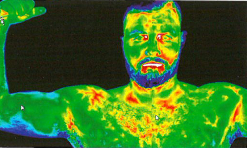 Thermography Benefits for Men